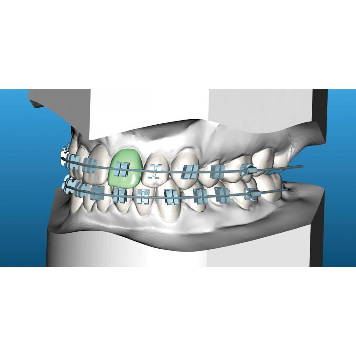 Indirect Bonding 2.0 – Laboratory – Orthodontic Practice US – SWYP ...
